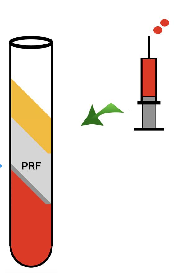 PRFを用いた再生医療